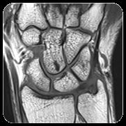 Wrist injury treatment in Mumbai - Dr. Pranjal Kodkani
