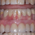 The Advanced Guide to invisalign in manchester