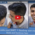 Best hair Transplant in India - Satya Hair Transplant Clinic