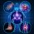 Arthritis - Causes, Symptoms, remedies and Ayurvedic Treatment