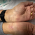Carpal Tunnel Surgery Doctor Near Me