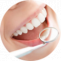 URBN Dental Uptown  — How Does Teeth Whitening Aid Brighten Your Smile?