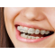 Treatment for Ceramic Braces in India   Healing Touristry