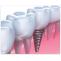 Dental veneers cost in Chennai