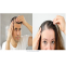 FUE Hair Transplant in Hyderabad-View Cost | Redefine Hair Transplant & Plastic Surgery Centre