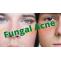 Fungal Acne: Symptoms, Causes, Diagnose, Treatment, Diet,