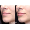 DERMAL FILLERS 101: Everything About the Biggest Trend in Cosmetics