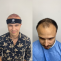 Hair Restoration Center in Aventura, FL | American Mane Hair Restoration