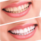 Teeth Whitening Singapore | Meet your Dentist today