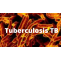 Tuberculosis TB Meaning, Symptoms, Causes, Test And Vaccine