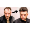 What are men's Hair Replacements? - health and fitness